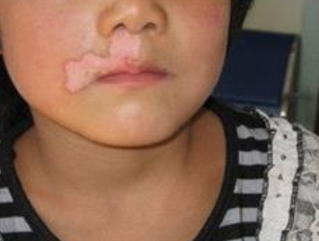 如何诊断少年白癜风疾病